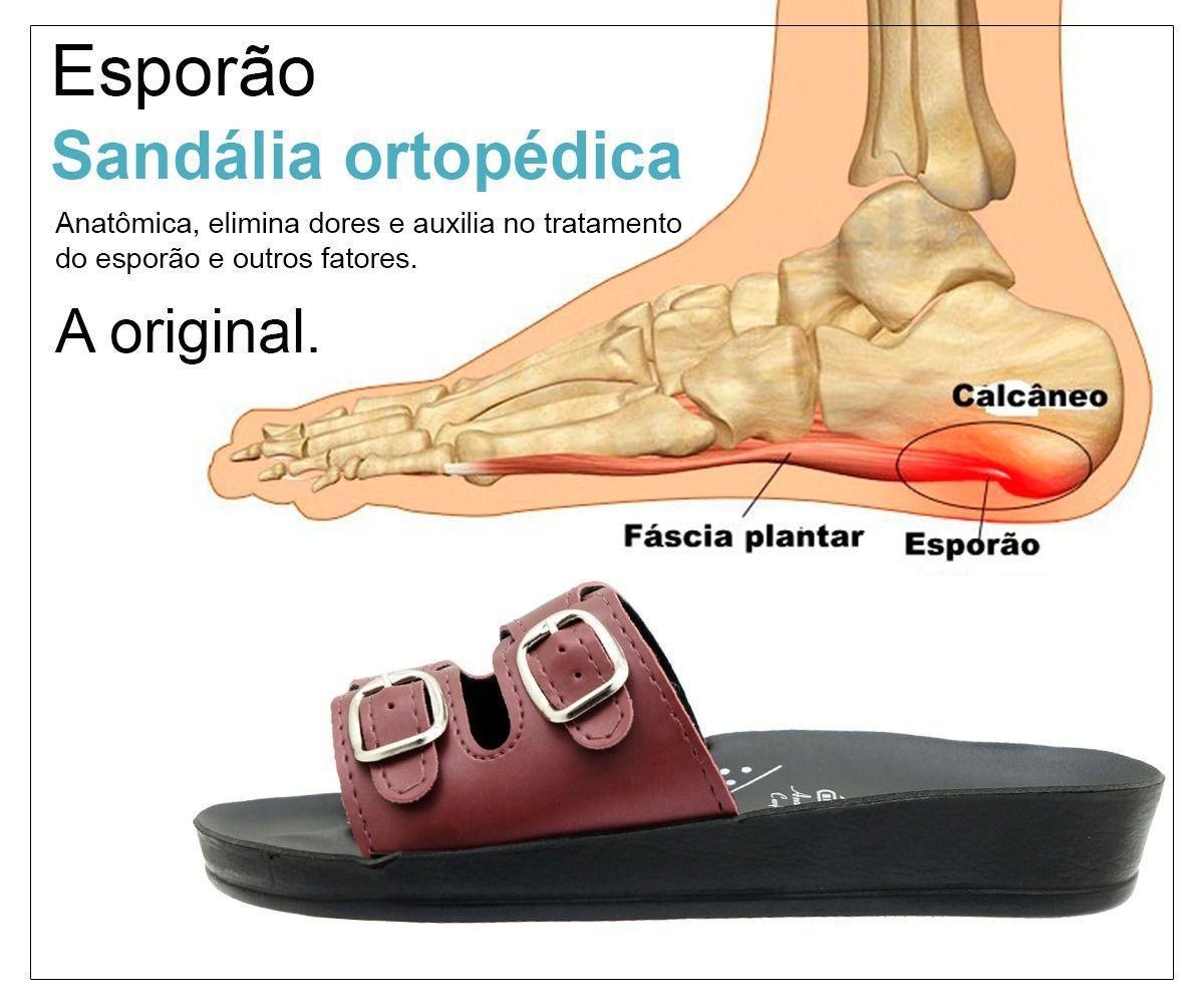 70d2f0537 Sandália Ortopédica Feminina para Esporão Joanete Prata NB02 - Webe flex R$  65,34 à vista. Adicionar à sacola