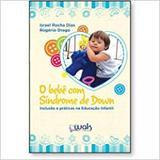 Bebe ccom Sindrome de Donw - Wak