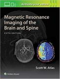 Magnetic Resonance Imaging Of The Brain And Spine - Lww
