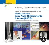 Manual de Tratamento de Fraturas da AO - Osteossíntese com Placa Minimamente Invasiva (MIPO)