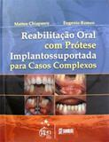 Reabilitacao Oral Com Protese Implantossuportada - Santos