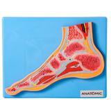Secção Mediana da Articulação do Pé - Anatomic