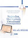 Segredos do Mini-implante na Ortodontia Contemporânea
