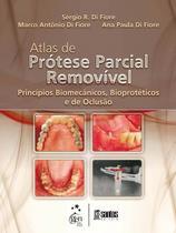 Atlas de Prótese Parcial Removível Princípios Biomecânicos e Bioprotéticos e de Oclusão - Santos