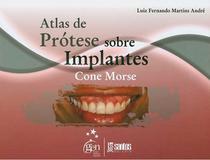 Atlas de Prótese sobre Implantes Cone Morse - Santos