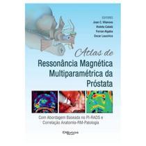 Atlas de ressonancia magnetica multiparametrica da prostata - Di livros