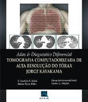 Atlas E Diagnostico Diferencial - Tomografia - Revinter