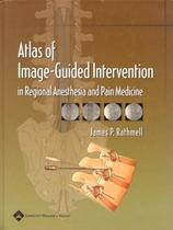 Atlas of image-guided intervention in regional anesthesia and pain medicine - Lww - lippincott wilians  wilkins