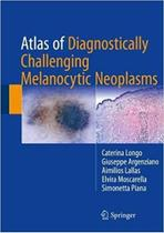 Livro Atlas Of Diagnostically Challenging Melanocytic Neopla - Springer