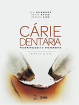 Livro - Cárie dentária: fisiopatologia e tratamento -