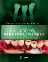 Livro - Diagnóstico e Tratamento das Alterações Peri-Implantares -