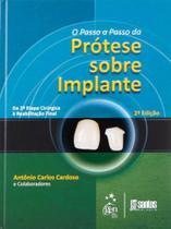 Livro - O Passo-a-Passo da Prótese Sobre Implantes - Da 2ª Etapa Cirúrgica à Reabilitação Final -