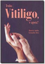 Tenho Vitiligo, e Agora - Atheneu