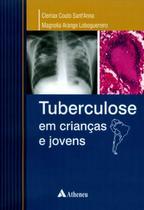 Tuberculose em Crianças e Jovens - Atheneu