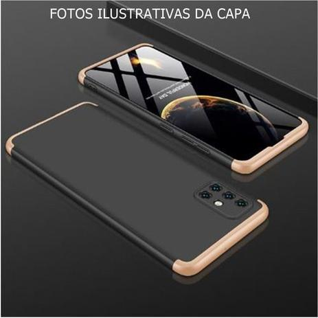 Imagem de Capa Capinha 360 Samsung Galaxy S20 Tela 6.2 Anti Impacto