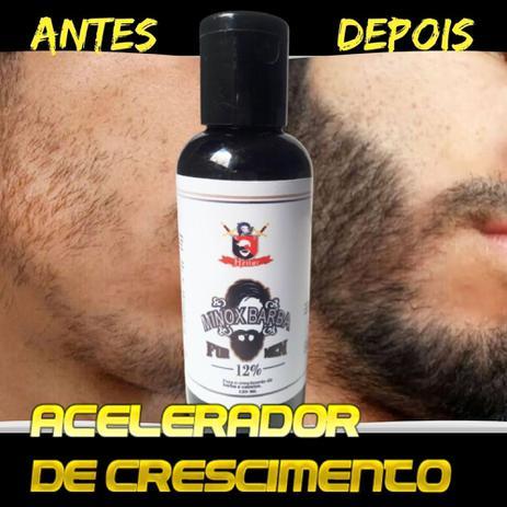 Imagem de Cresce Pêlo - Tônico De Crescimento Cabelo e Barba - PRODUTO ORIGINAL - Entrega Imediata