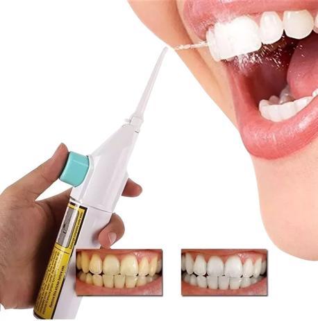 df95f1f8b Jato De Agua Bucal Limpeza Gengiva Dente Dental Power Floss (88830) - Ab  midia