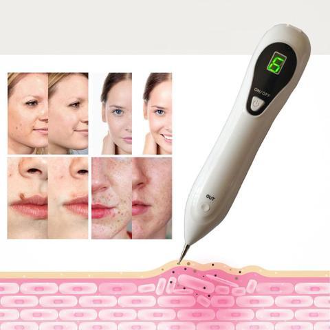 Imagem de Caneta Limpa Pele Anti Rugas Despigmentador Removedor De Manchas Laser Plasma