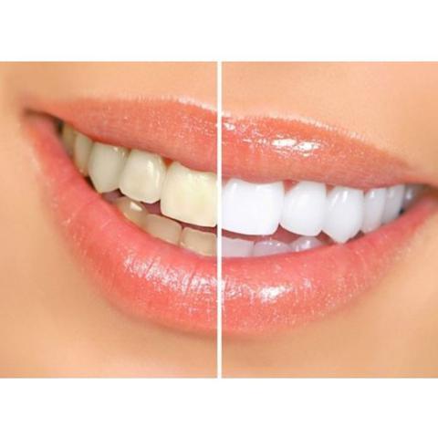 Clareador Dental White Light Outros Beleza E Saude Magazine Luiza