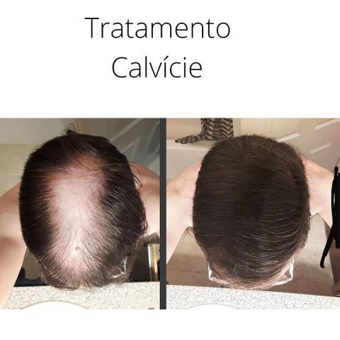 Imagem de Dermaroller Microagulhamento Acne Barba Capilar Estrias