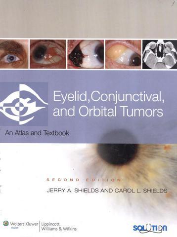 Imagem de Eyelid,  conjunctival, and orbital tumors - 2nd ed - Lww - lippincott wilians & wilkins