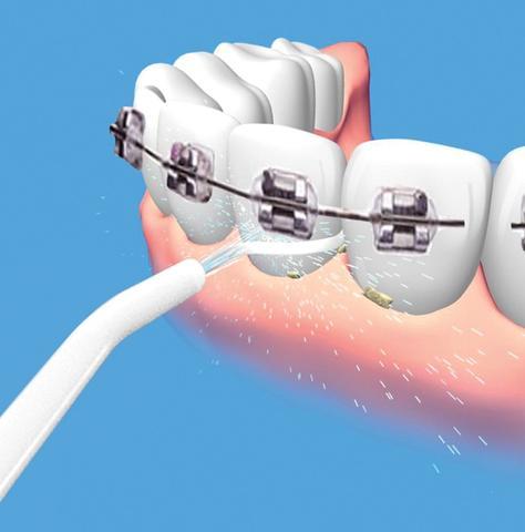 Imagem de Jato De Agua Bucal Limpeza Gengiva Dente Dental Power Floss (88830)