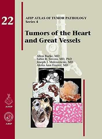 Imagem de Tumors Of The Heart And Great Vessels - American registry of pathology